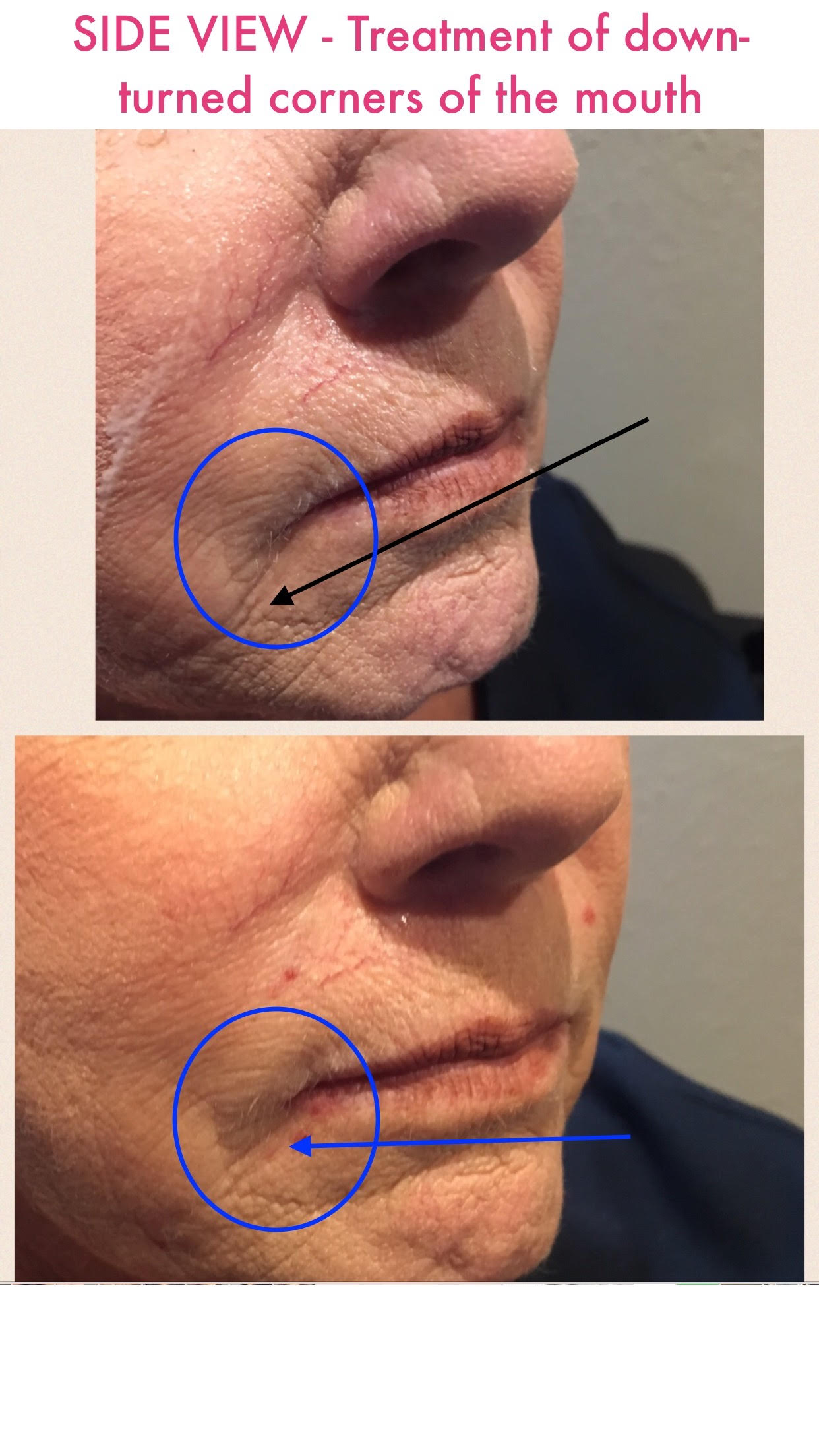 Dermal Fillers Before and After 2 -Glam RN