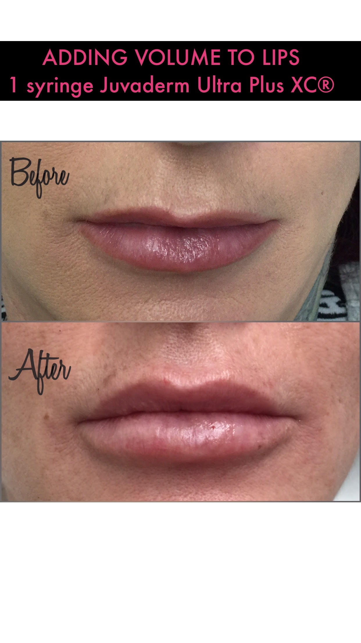 Dermal Fillers Before and After 3 -Glam RN