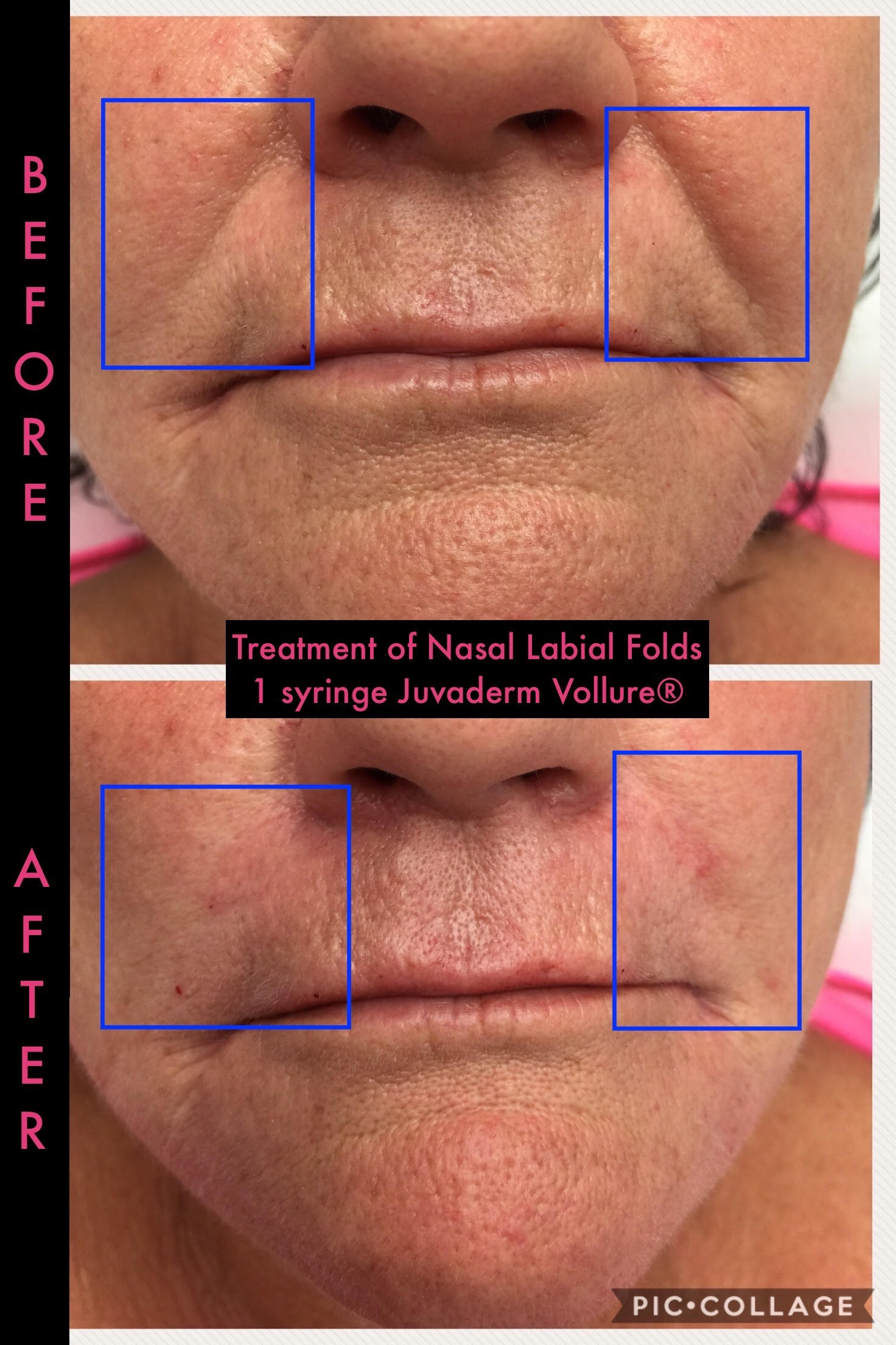Dermal Fillers Before and After 4 -Glam RN