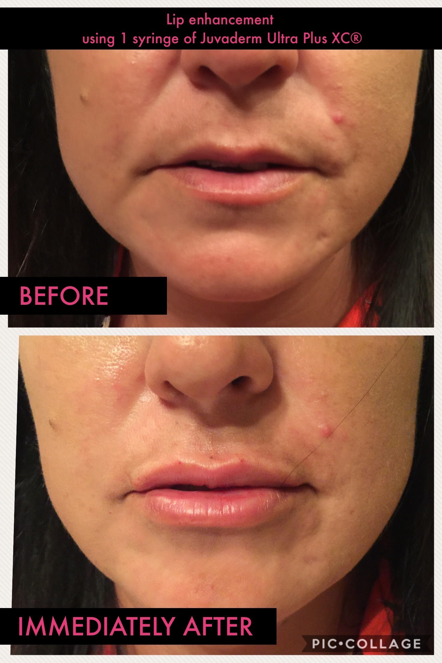 Dermal Fillers Before and After 5 -Glam RN