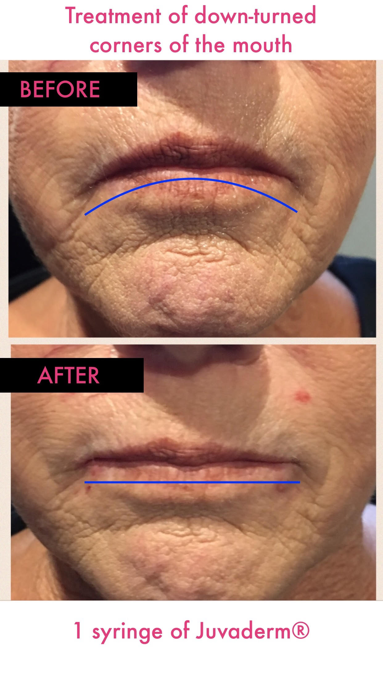 Dermal Fillers Before and After -Glam RN